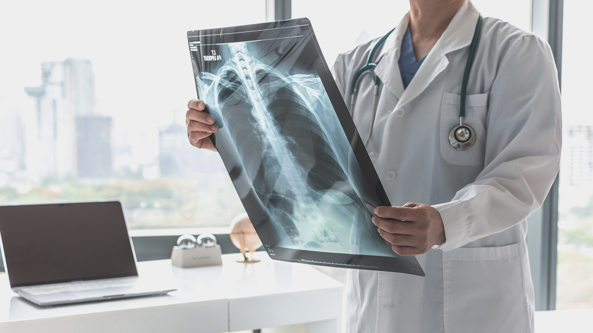 ERS Assembly 12: Interstitial lung diseases - Preview Image