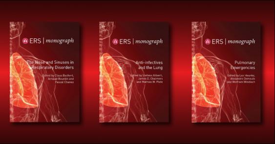ERS Monograph - Publication Preview Image