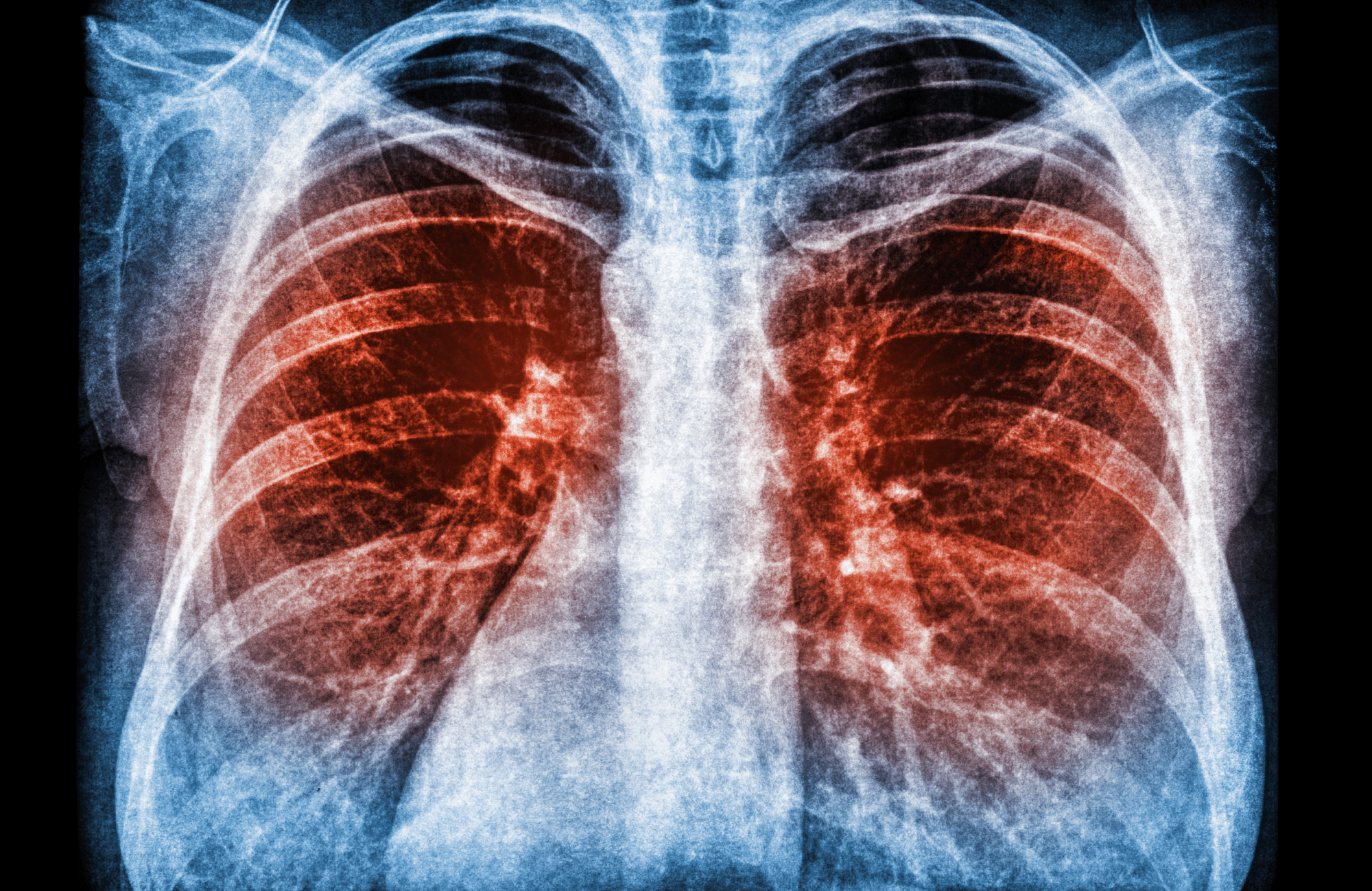 Lung functional imaging - preview image