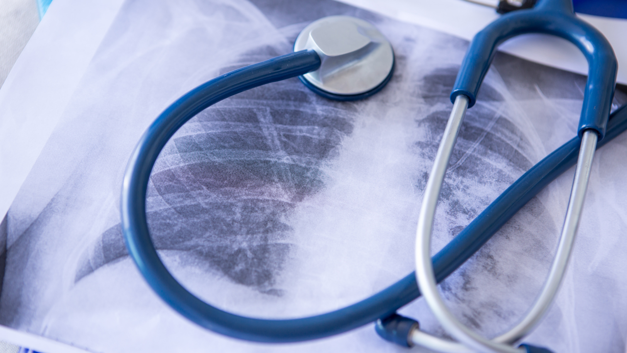 Virtual academy on interstitial lung diseases - Preview Image
