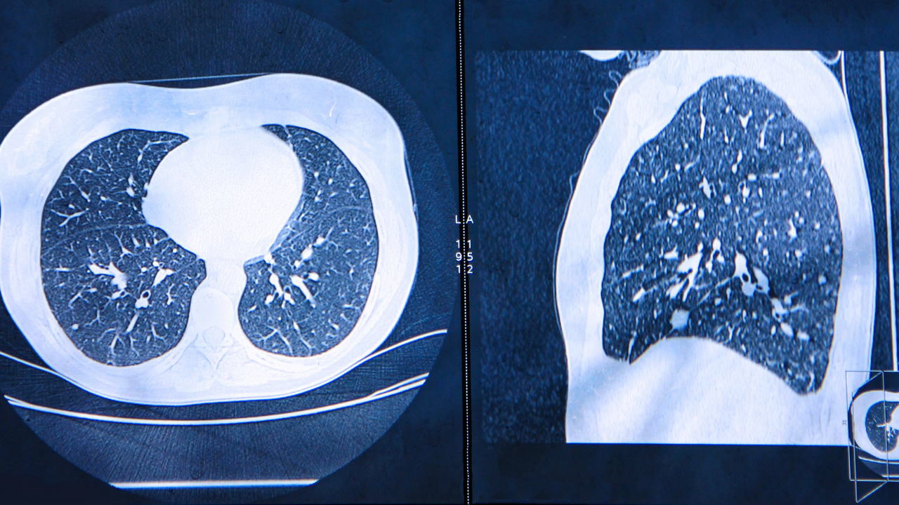 Artificial intelligence could help diagnose lung cancer a year earlier - preview image
